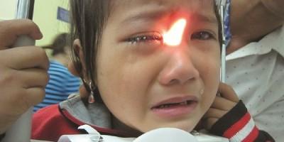 Viêm nội nhãn nội sinh trên trẻ em