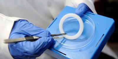 Phát hiện mới: Vòng âm đạo ngăn ngừa lây nhiễm HIV