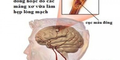 8 món ăn hỗ trợ điều trị tai biến mạch máu não